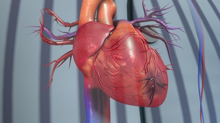 Myocardial Infarction Banque d'images