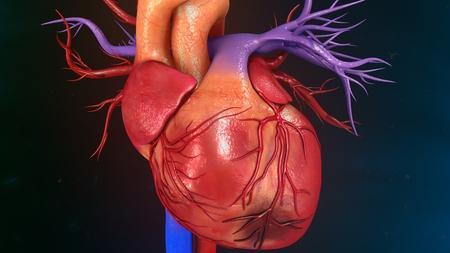 myocardial infarction: Myocardial Infarction Stock Photo