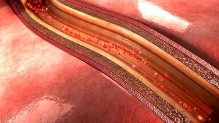 infarction: coronary artery