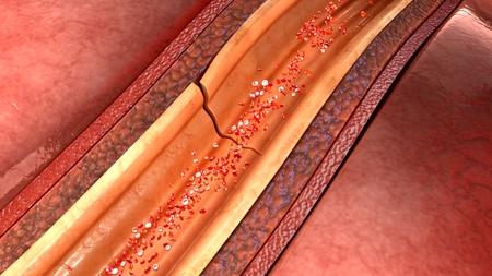 vein valve: Coronary artery dissection
