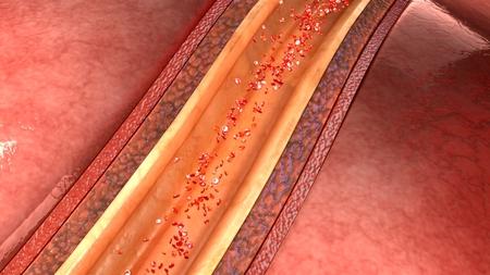 artère coronaire