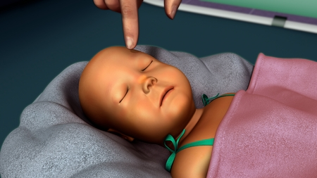 new born: Jaundice in new born Stock Photo