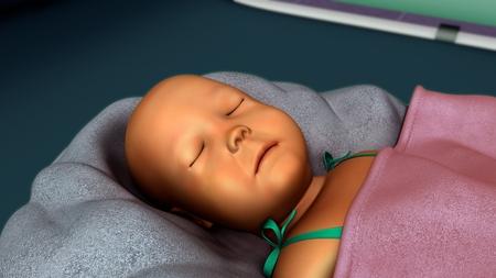 jaundice: Jaundice in new born Stock Photo