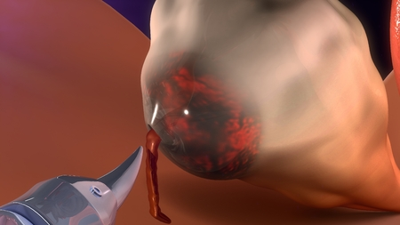 surgical removal: Removal of cysts