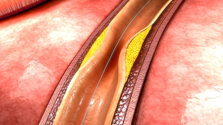 Coronary angioplasty Stock Photo