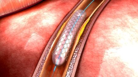 L'angioplastie coronaire Banque d'images