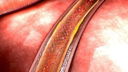 catheter: Coronary angioplasty Stock Photo