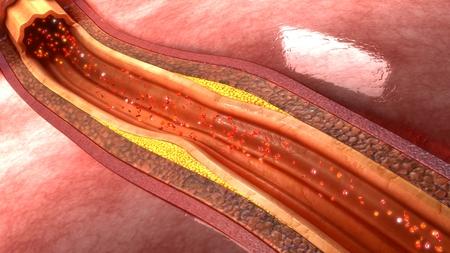 grasas saturadas: la placa de la arteria coronaria Foto de archivo