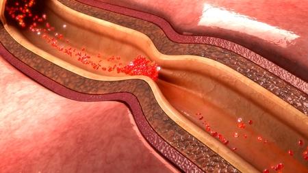 narrowing: coronary artery spasm