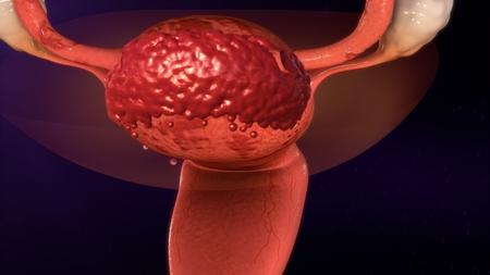endometrium: Endometriosis