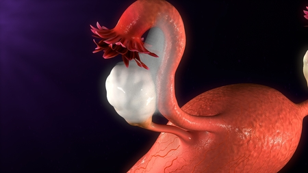 endometrial: Endometriosis