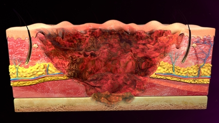 skin injury: Fourth degree burns