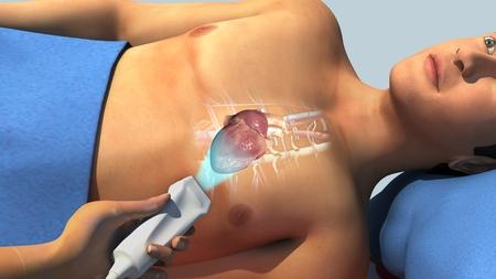 cusp: Echocardiogram
