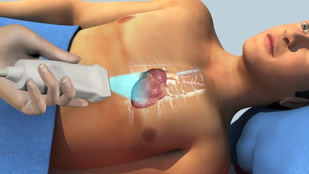 aortic valve: Echocardiogram