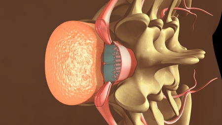 Spinal anesthesia Stock Photo