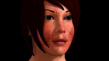 acne: Acne