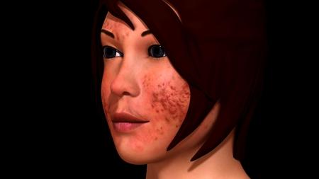 redness: Acne