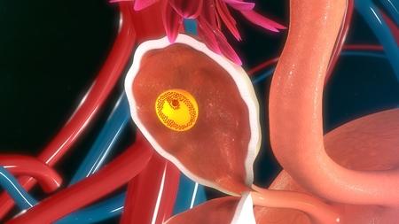 infertility: Fertilised egg in ovary