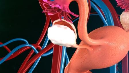fallopian: Uterus