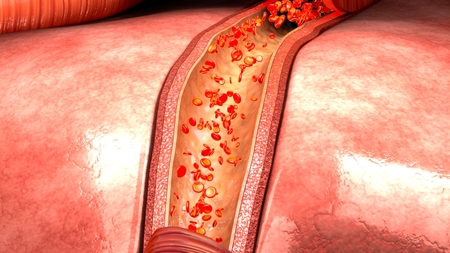 blood flow: Blood flow in vessels