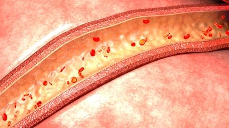 vessels: Blood flow in vessels