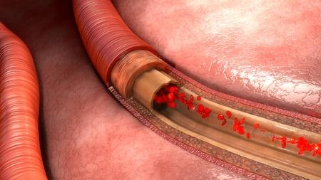 circulating: Blood flow in vessels