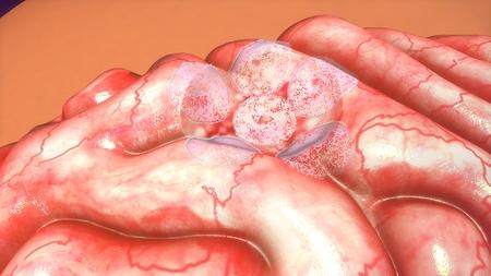 tumor: Brain tumor Stock Photo