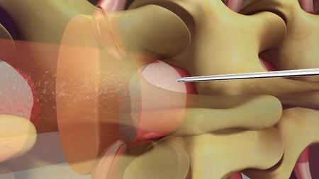 anaesthesia: Spinal Anesthesia