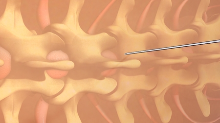 spinal: Spinal Anesthesia