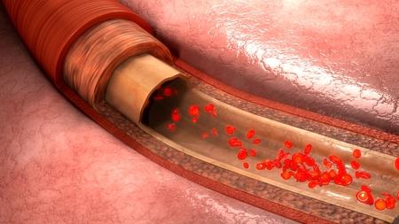 coagulate: Blood flow in vessels