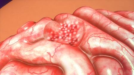 tumors: Brain tumor Stock Photo