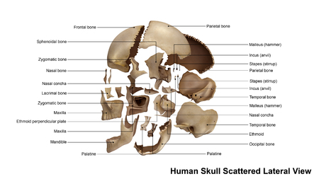 parietal: Skull Scattered Lateral view