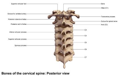 backache: Cervical spine Posterior view