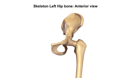 osteoarthritis: Lower Limb_Anterior view