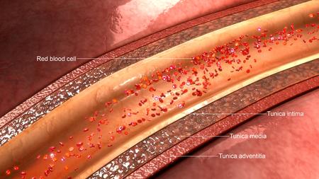 arterial: Coronary artery