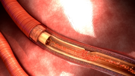 Artery Dissection aerial