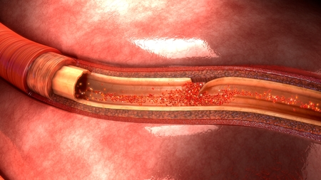 Artery Dissection front