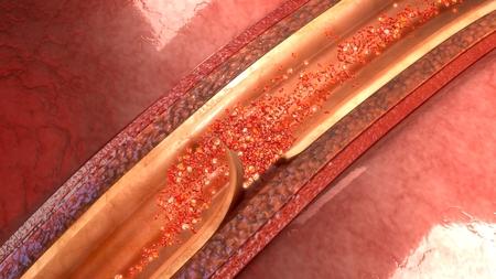 Artery Dissection closeup Stock Photo