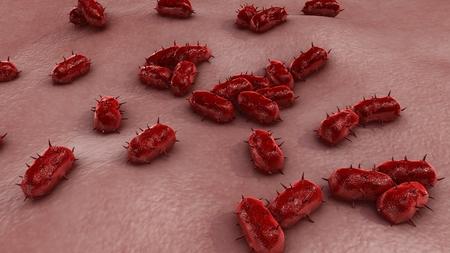 bacterial meningitis: Bacterial Meningitis back