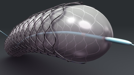Stent perspective