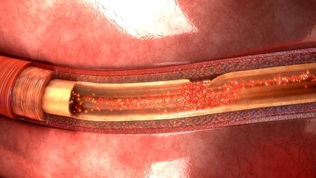 Dissección de arterias superior Foto de archivo - 88853619