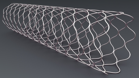 Angioplasty Stent perspective