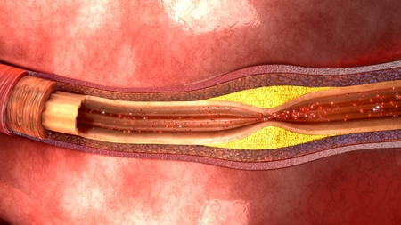 Atherosclerosis top