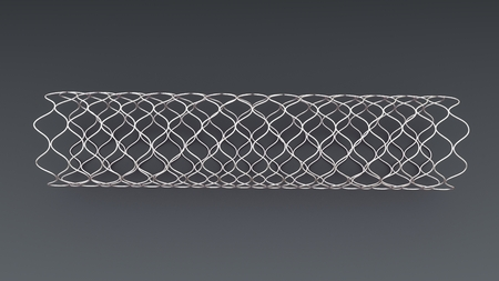 Angioplasty Stent top