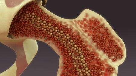 Bone marrow closeup