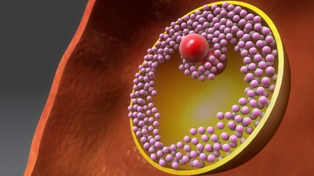 Ovary Full perspective