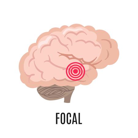 Focal epilepsy icon isolated on white background. Vector Illustration