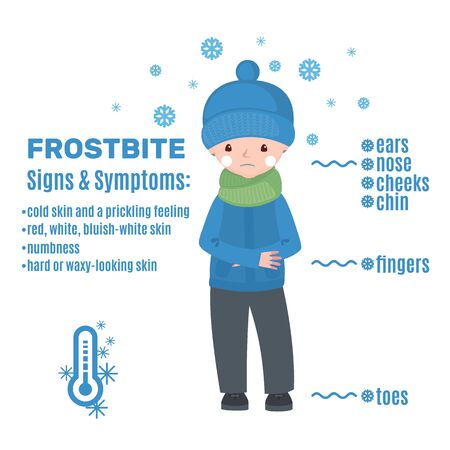 Frostbite infographic in cartoon style isolated on white background. Vector illustration.