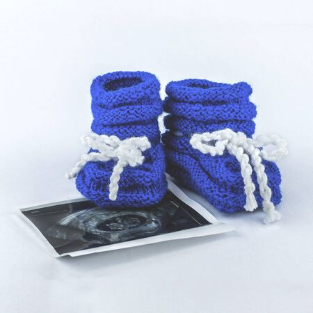 It is a boy. Pregnancy. Waiting for a baby. Blue slippers with a photo of ultrasound on a white background. 写真素材