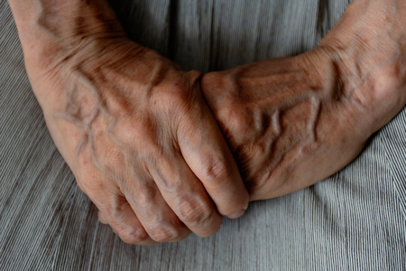 Senior woman grasps her hand 스톡 콘텐츠